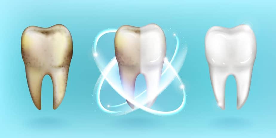 https://arie-stomatologia.pl/wp-content/uploads/2020/02/2298-1280x640.jpg